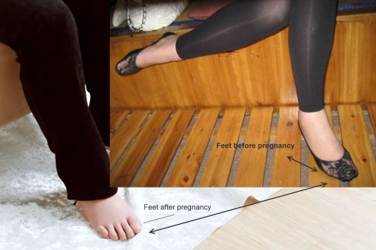 Vivian's feet - before and after pregnancy